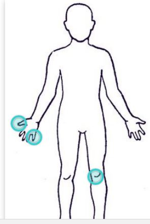 body outline with points